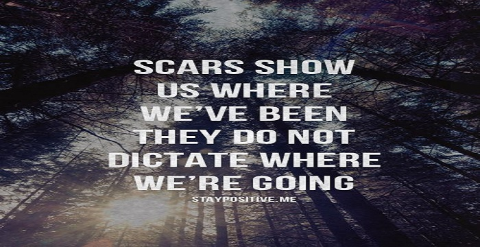 scar quotes.html